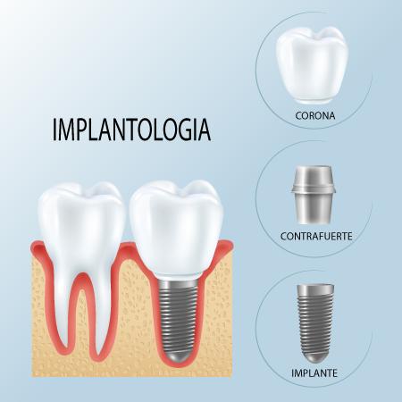 Implantologia-estructura